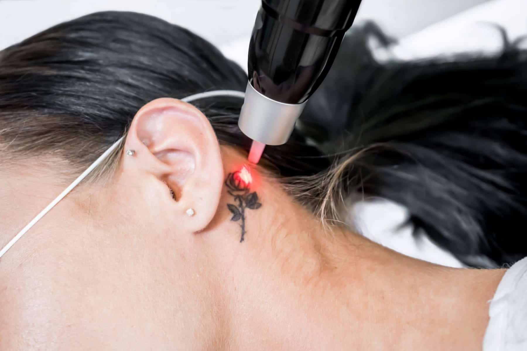 How ink colour affects laser tattoo removal